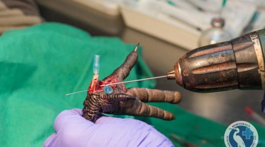 Sólyomszárny és daruláb: mikro-csontsebészet
